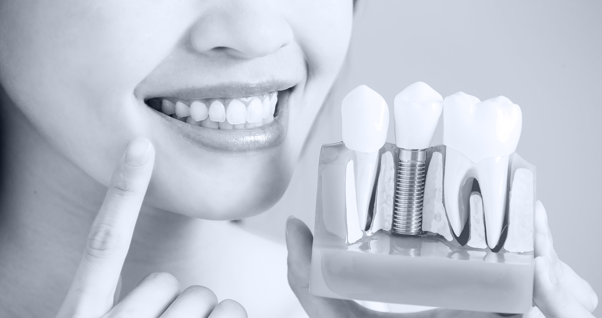 Restoring The Beauty Of Your Smile