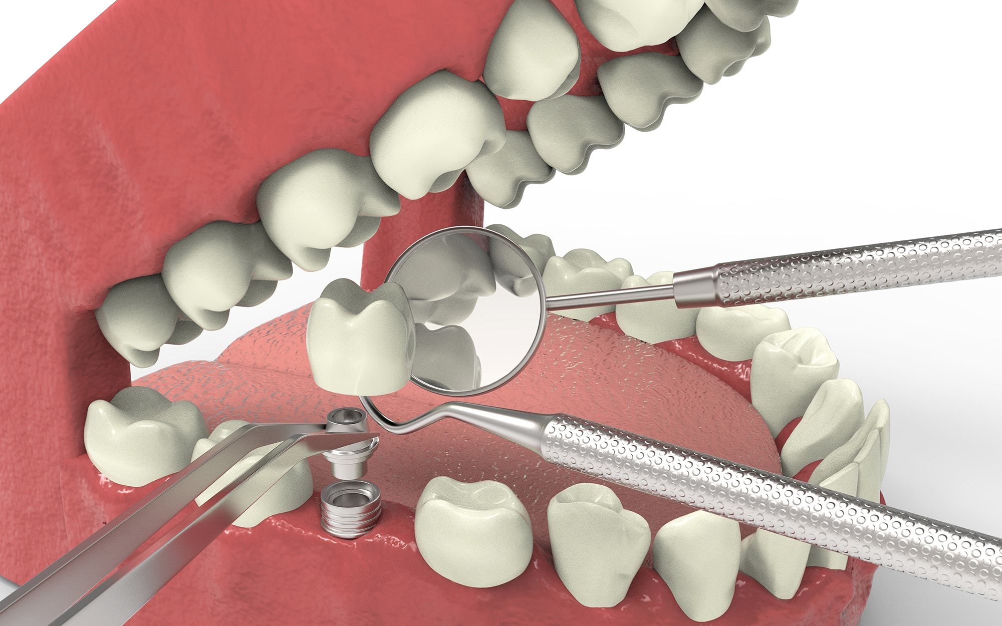 Natural-Looking Dental Implants in Palatine, IL